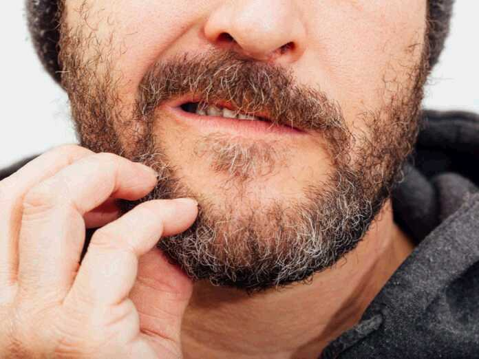 reduce beard itch
